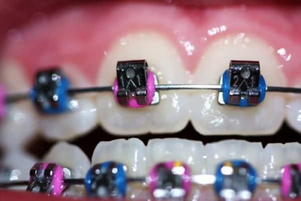 Ortodoncia de colores