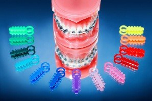 brackets-con-gomitas-de-color